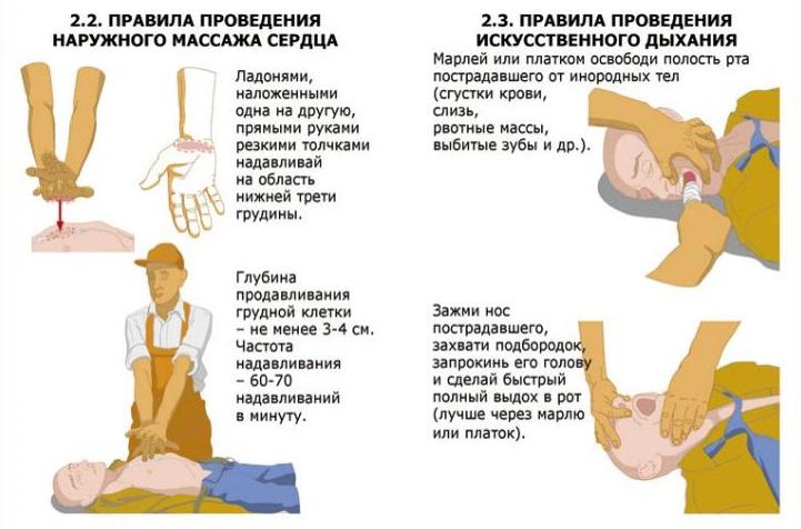 Правила проведения искуственного дыхания